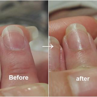 その爪の歪み、ネイルサロンで改善できるかも!