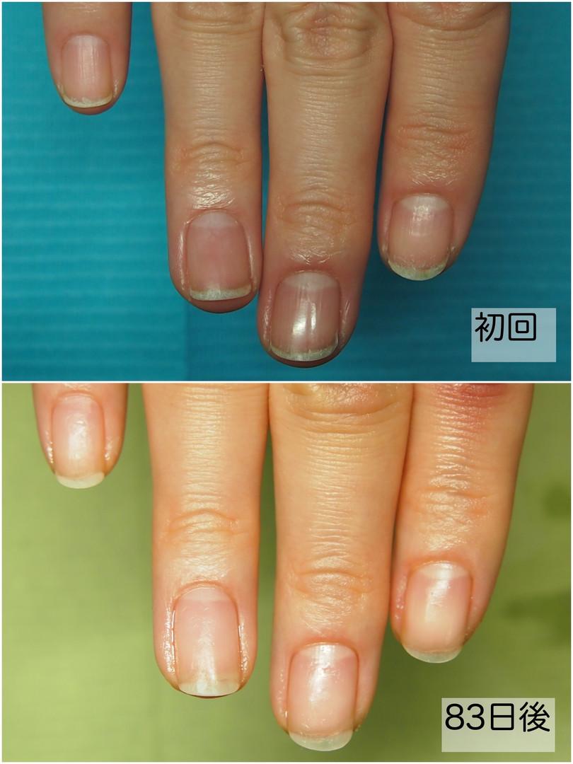 ラケット爪Before&after.jpg