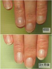 深爪改善before&After 井野様(右手).jpg