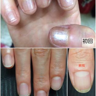 深爪改善Before&after