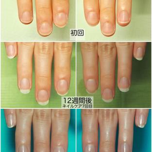 「爪の形は生まれつき?」答えは「NO!」ネイルケアを半年間続けた結果、とんでもないことに!