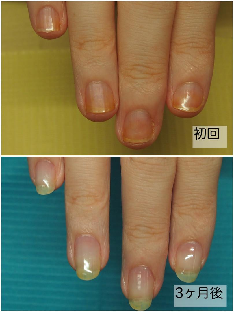 深爪改善 Before&After 終了.jpg