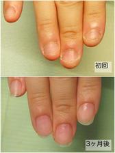深爪改善Before&After 卒業11.6.jpg