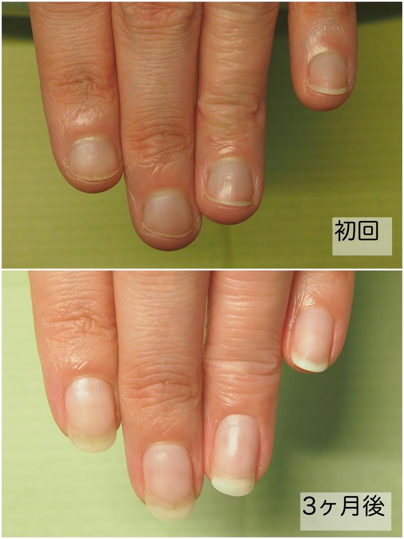 深爪改善before&After 井野様(左手).jpg