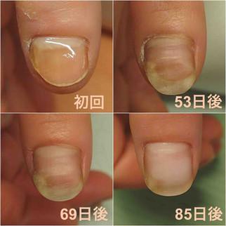 爪の形は3ヶ月で劇的に変化する