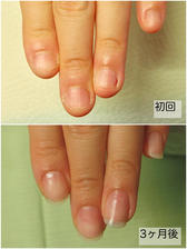 深爪改善Before&After 卒業11.6 左手.jpg