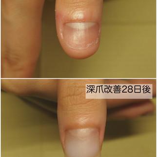 【深爪改善3ヶ月コース】開始から28日後