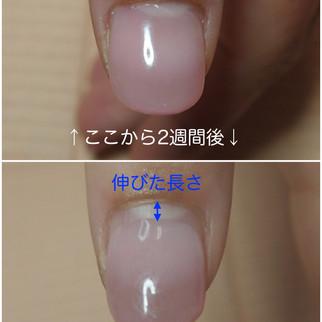 【深爪改善3ヶ月コース】2週間でも爪はこんなに伸びる(もちろん個人差有り)