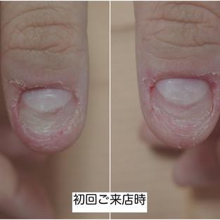 【深3コース】保湿を2週間頑張った結果、肌が劇的に変化しただけじゃなく爪もしっかり伸びた話。