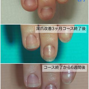 【深爪改善3ヶ月コース】終了から6週経過。深爪を予防するためのネイルケア