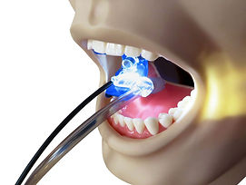 Ascentcare Dental Products Lighted Saliva Sidekick illuminated mouth prop saliva ejector tube holder
