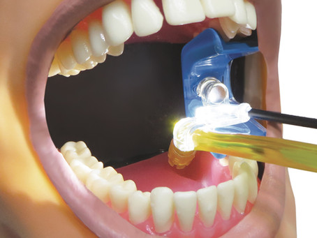 Maximize Your Success with Ascentcare's Illuminated Mouth Prop Accessories
