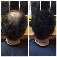 Please ask if you require thinning hair to be thickened