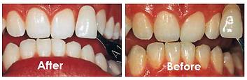 Greenville, SC Dentist , Greenville Dentist , Greenville SC Dentist , Greenville Dental Office , Greenville Dentist Office , Dentist in Greenville SC , Cosmetic Dentist Greenville SC