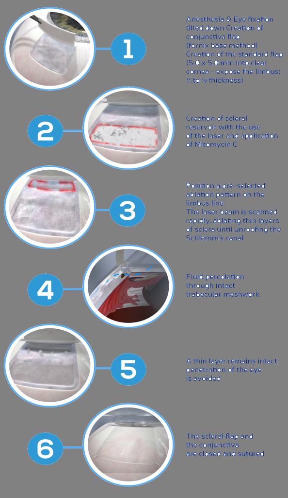 Procedure-Flow-Brochure-2016-transparent