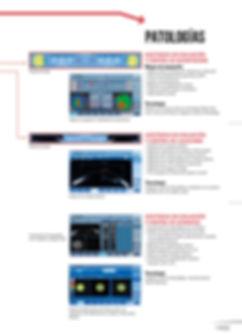 VX120+ Dry Eyes_VISIONIX_3V_2019-08-ES-W