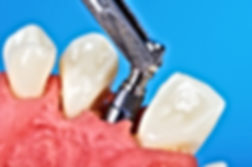 Implantedental.jpg
