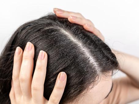 6 Trucchetti per mantenere i capelli puliti più a lungo!