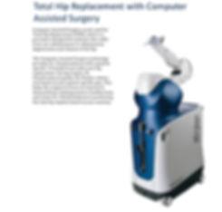 Robotic Hip Replacement | Melbourne Orthopaedic & Trauma Institute