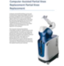 Robotic Knee Replacement | Dr. Siva Chandrasekaran