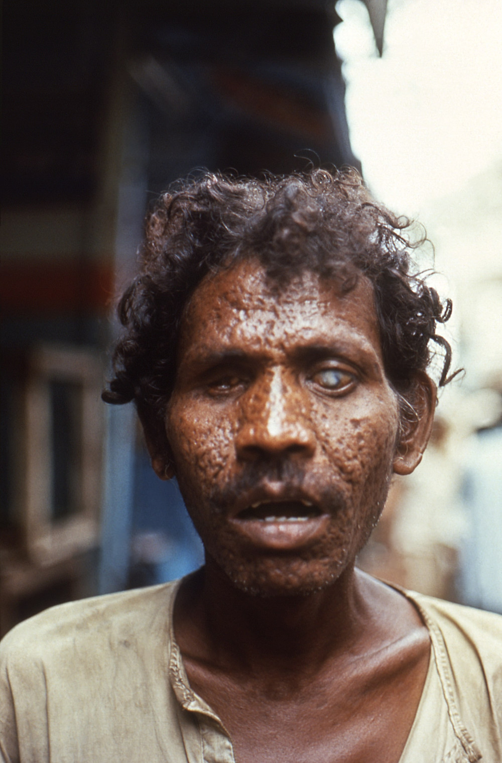A man with facial scarring and blindness due to smallpox
