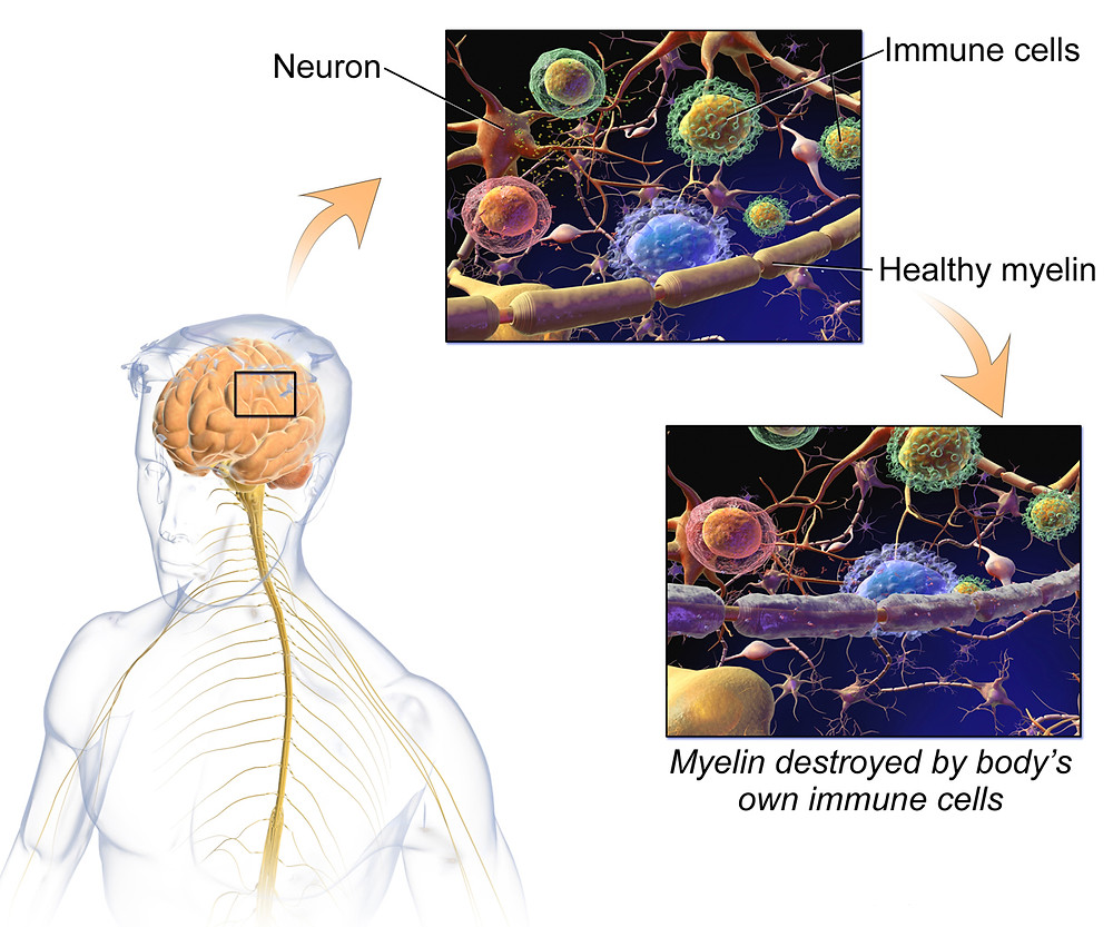 Illustration on Multiple Sclerosis showing impaired myelin
