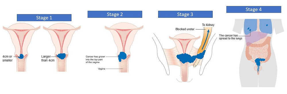 Cervical Cancer Stages. Cancer Research UK [CC BY-SA 4.0 (https://creativecommons.org/licenses/by-sa/4.0)]