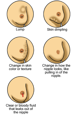 Breast Cancer Signs. Morning2k [Public domain]