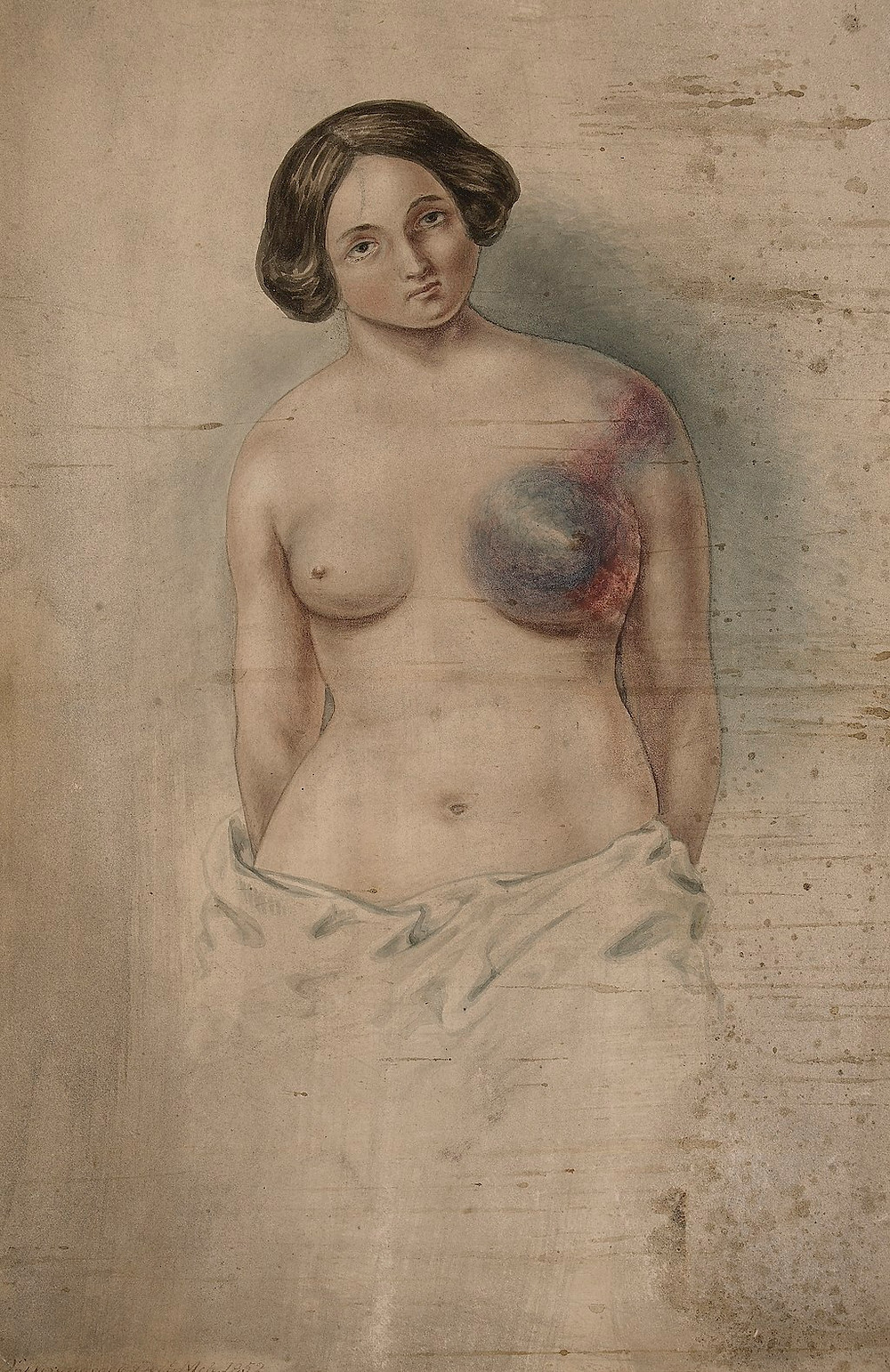 Woman suffering from cancer of the left breast Wellcome L0061346. Source: Wikimedia Commons.