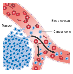 A diagram showing tumour cells invading the blood stream and developing into cancer cells