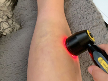 LASER therapy: is it as scary as it sounds?