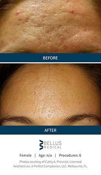 SkinPen Agape Medical spa before & after.jpg
