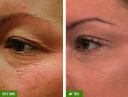 madonna eye lift agape medical spa