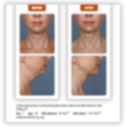 kybella agape medical spa
