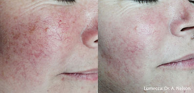 lumecca before & after agape medical spa