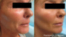 fractora before & after agape medical spa