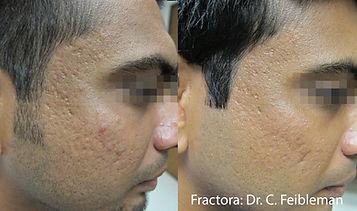 fractora before & after agape medical spa