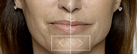 restylane before & after agape medical spa
