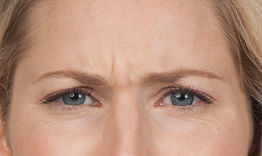 botox before & after agape medical spa