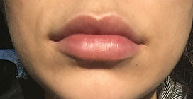 lip injection agape medical spa