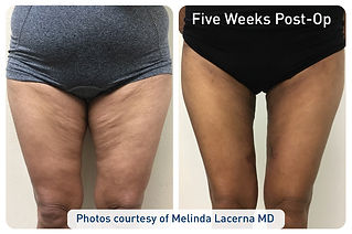 renuvion_before-after_patient4-thighs1_7