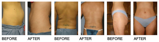 smartlipo agape medical spa