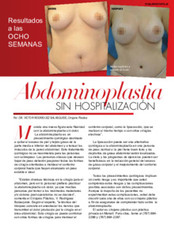TVN_abdominoplastia_3520.pdf.jpg