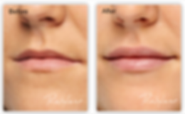 Restylane lip filler before and after