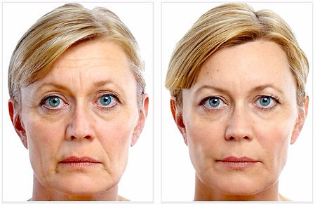 Liquid Facelife Before and After
