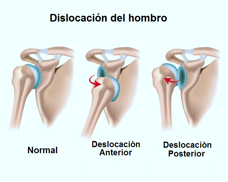 hombro lesion