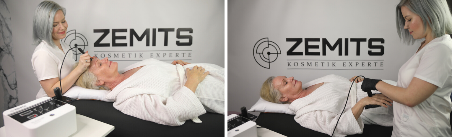 Face, Neck and hands treatment with radio Frequency to reduce signs of aging