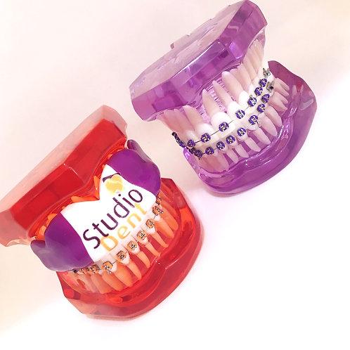 Protetor bucal para paciente ortodôntico - Mostruário