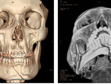 Zonas de resistência e fragilidade da face