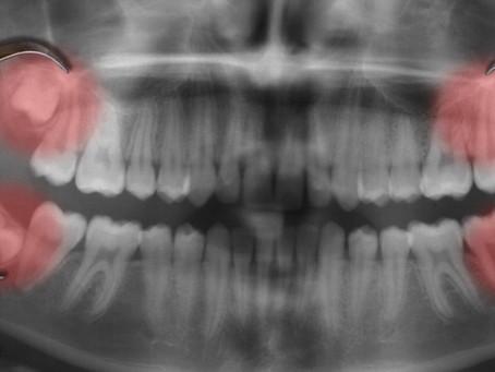 Terceros molares en atletas
